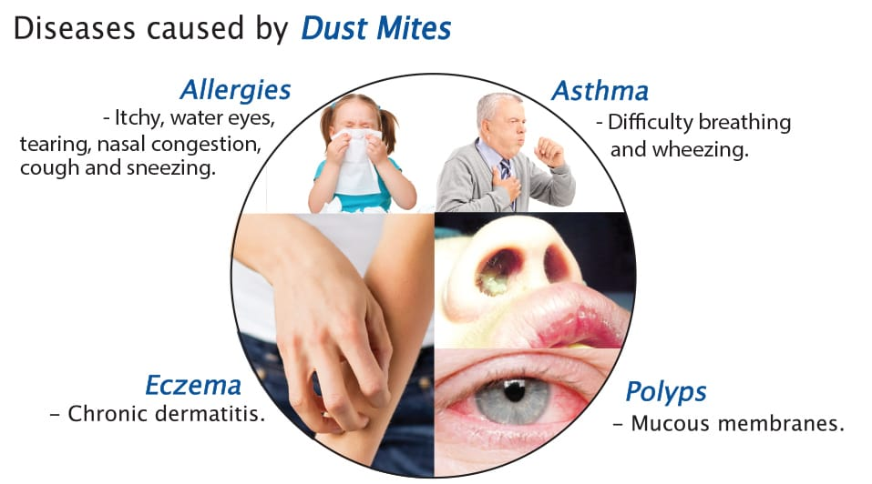 What Are Dust Mites And How To Get Rid Of Them Sydney